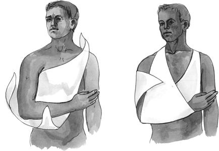 Использование косынки для иммобилизации плечевого пояса и верхней конечности