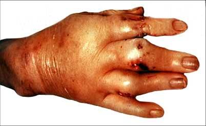 Кисть правой руки при подагре, тофусы