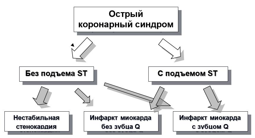 Классификация и динамика форм острой ишемии миокарда