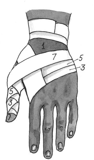 Колосовидная повязка на большой палец