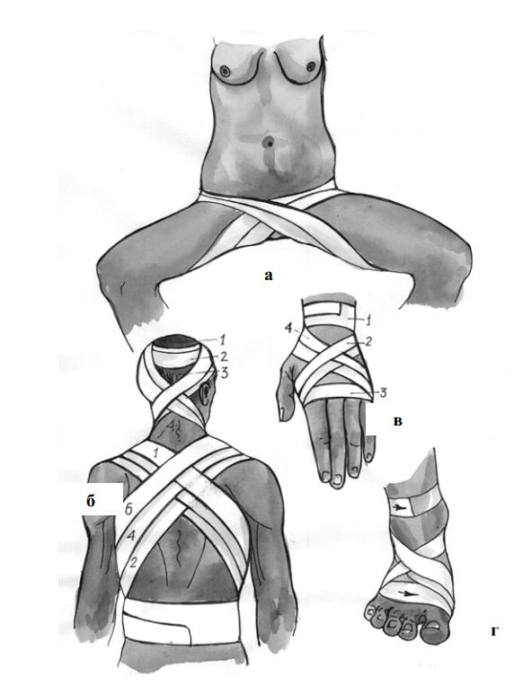 Крестообразная повязка