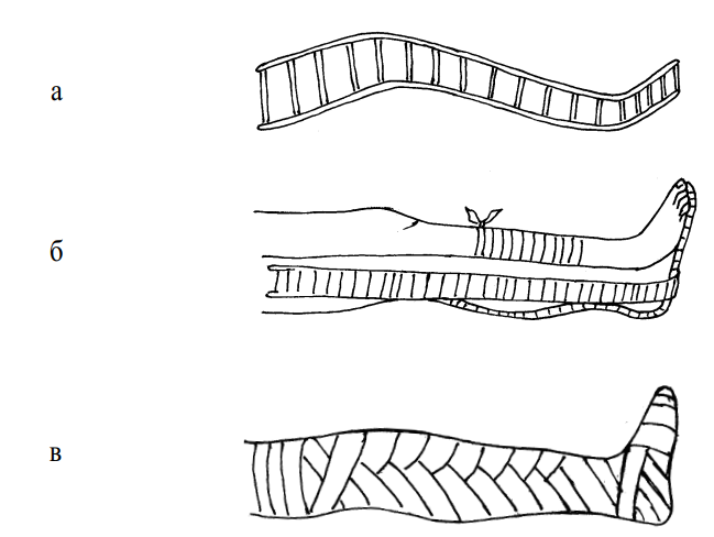 Наложение лестничной шины при переломах костей голени и голеностопного сустава