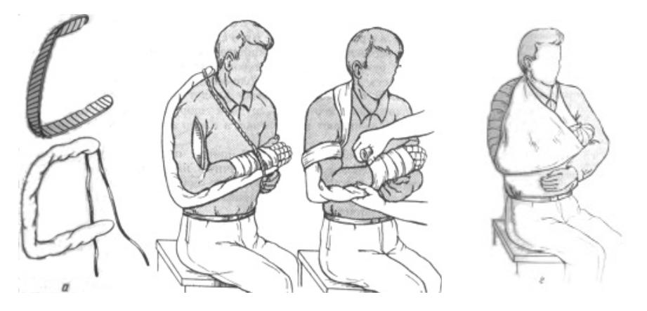 Наложение лестничной шины при переломах плечевой кости