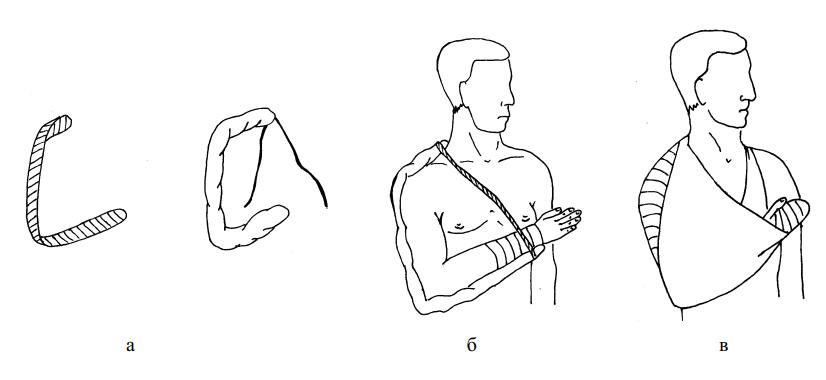Наложение лестничной шины при вывихах плечевой кости