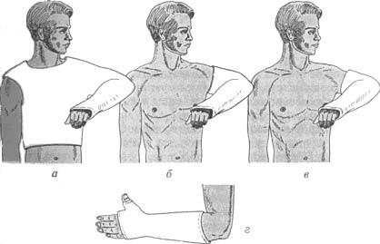 Объем гипсовой повязки при повреждении