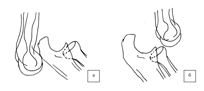 Передний и задний вывихи предплечья