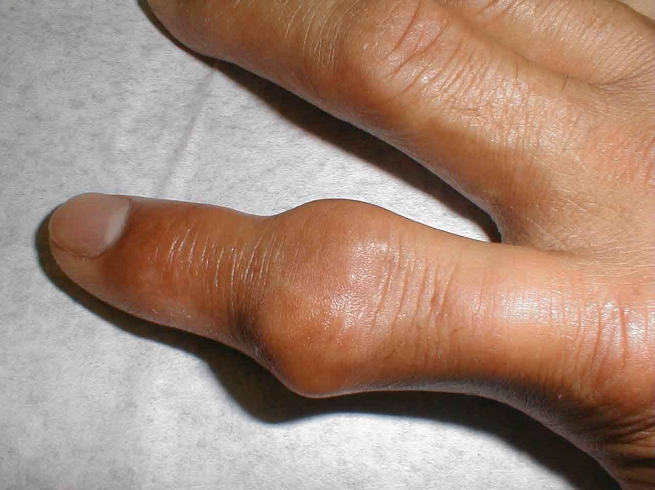 Подагрический артрит межфалангового сустава кисти