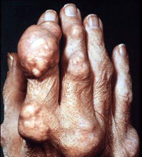 Подагрический артрит суставов кисти, тофусы