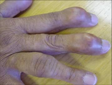 Подагрический артрит суставов кисти
