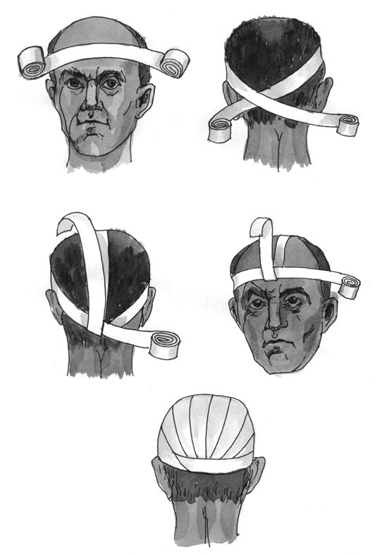 Повязка «шапка Гиппократа»