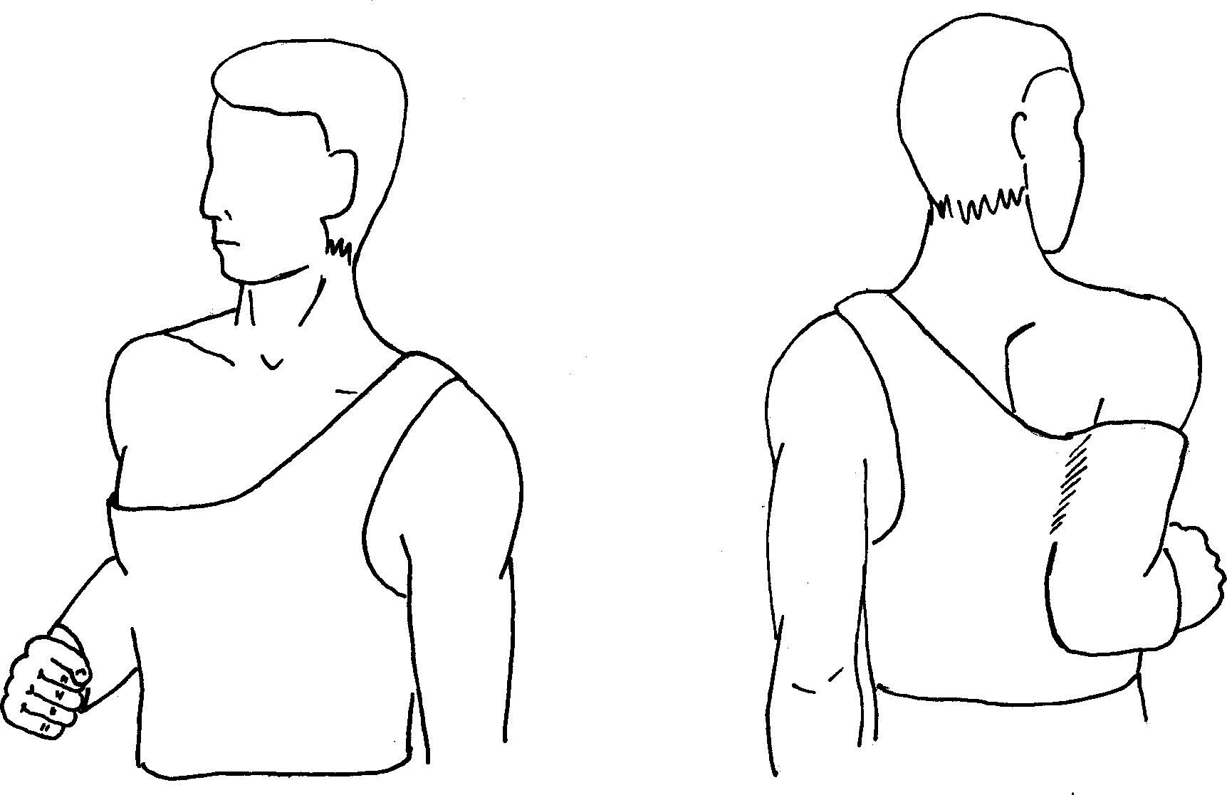 Повязка Смирнова – Вайнштейна