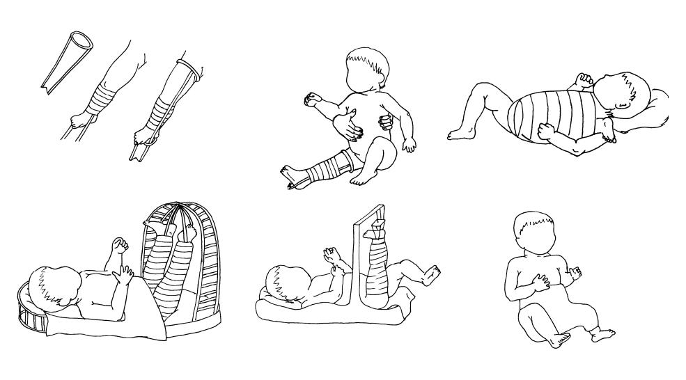Применение гипсовых повязок у детей