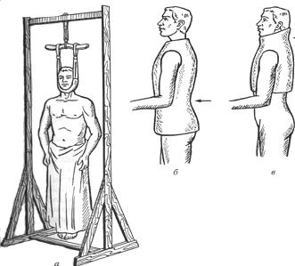 Рама Гоффа (а). Гипсовые корсеты при переломах поясничного (б) и шейного (в) отделов позвоночника.
