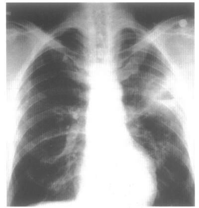 Рентгенограмма грудной клетки. Воздушная полость абсцесса с горизонтальным уровнем жидкости в верхней доле левого легкого