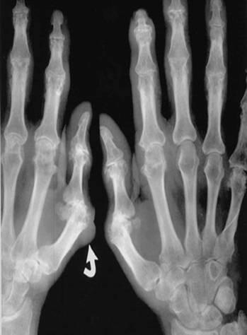 Рентгенограмма кистей при подагрическом артрите