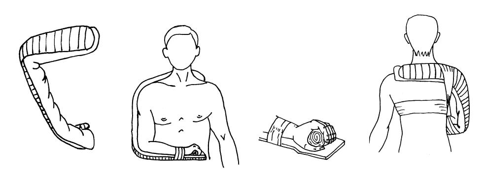 Шина Крамера с ватно-марлевой подкладкой. Фиксация плеча при помощи шины Крамера.