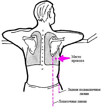 Техника проведения плевральной пункции