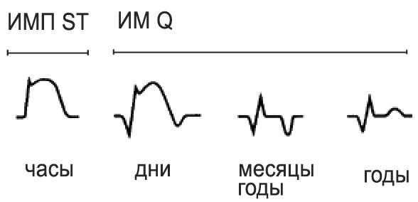 Типичная динамика ЭКГ при ИМ с зубцом Q