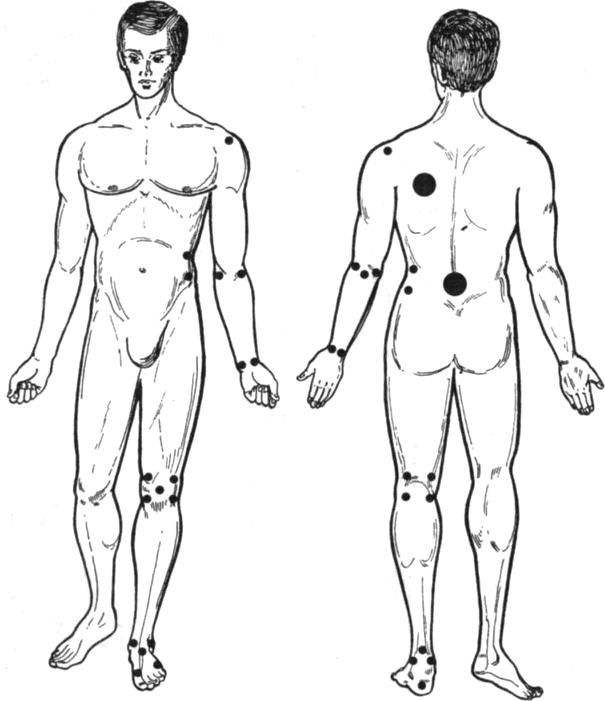 Точки тела, подлежащие защите при наложении гипсовых повязок