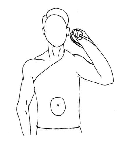 Торакобрахиальная гипсовая повязка при иммобилизации плечевой кости