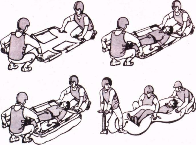 Транспортировка пострадавшего при помощи вакуумных ковшовых носилок