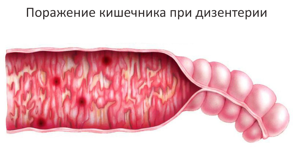 поражение кишечника при дизентерии