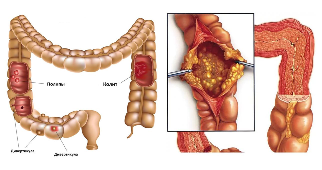 Колит – воспалительное заболевание толстого кишечника