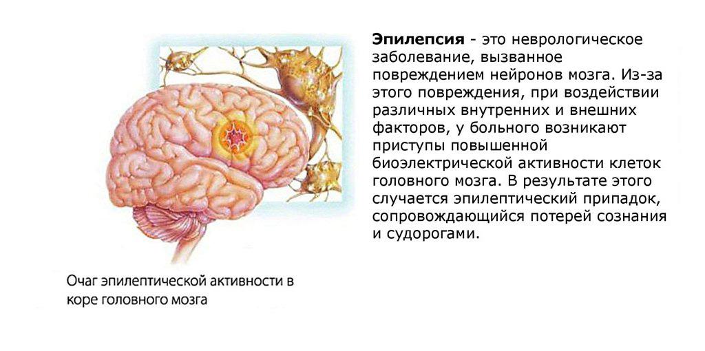 что такое эпилепсия