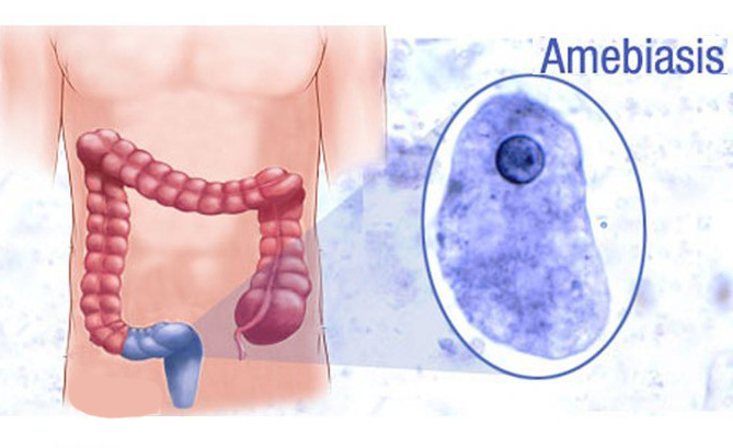 Амебиаз