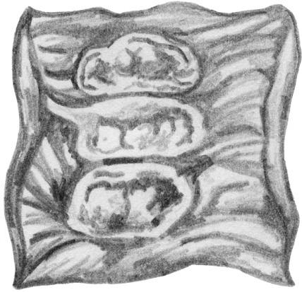 Анатомические изменения нижнего отдела толстой кишки при амебиазе с глубоким распадом