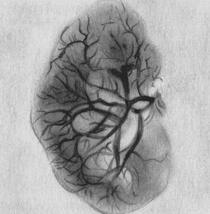 Артериограмма пиелонефритической почки