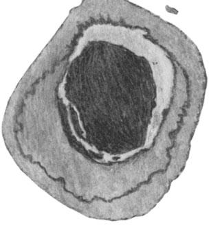 Атеросклеротическая бляшка, суживающая просвет артерии