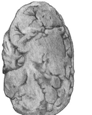 Атеросклеротический нефроцирроз.