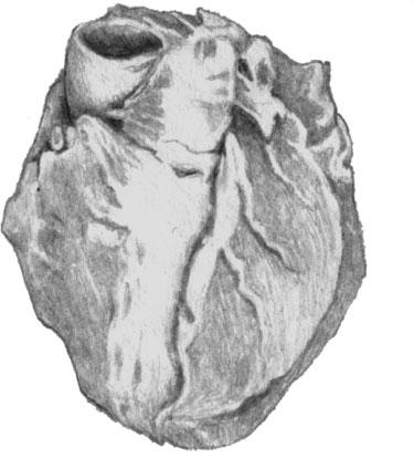 Атеросклероз венечной артерии сердца