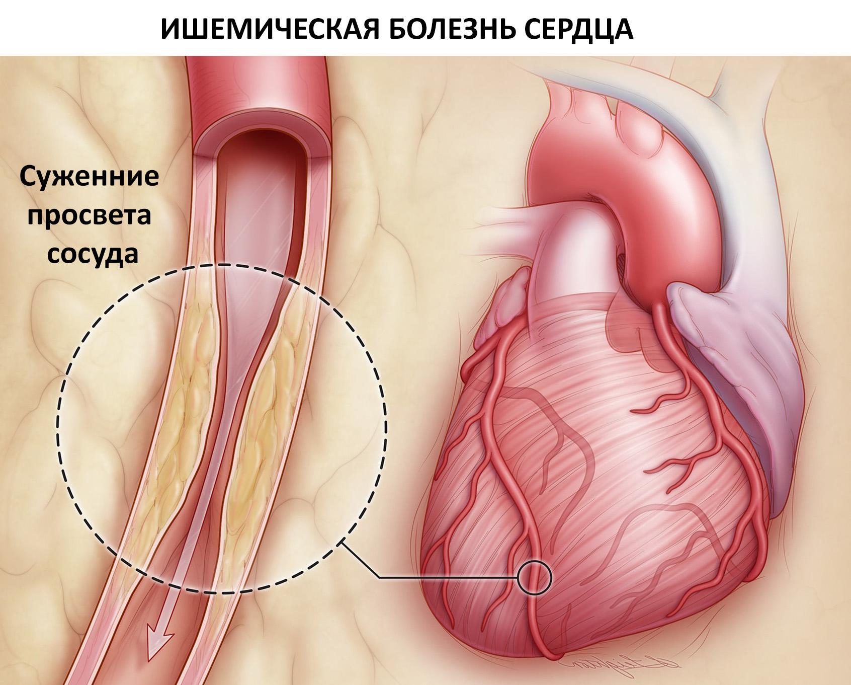 причины ишемической болезни сердца