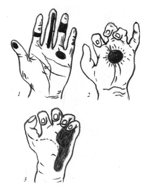 Болезненные зоны при различных видах панариция