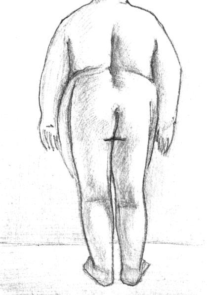 Больной ожирением (тяжелая форма)
