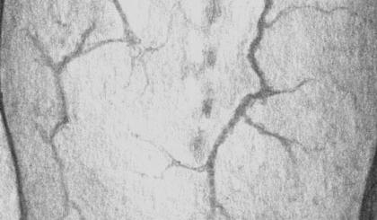 Цирроз печени. Венозная сеть на спине