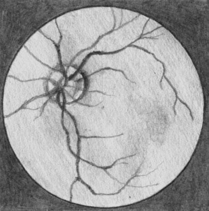 Диабетическая ангиопатия сетчатки