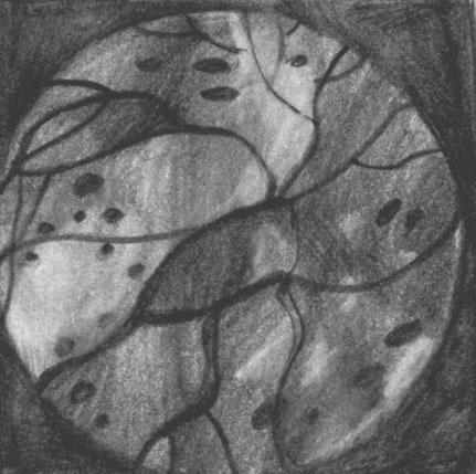 Диабетосклеротическая ретинопатия