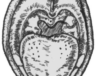Дифтерия зева локализованная