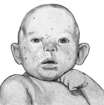 Экссудативный диатез. Детская экзема