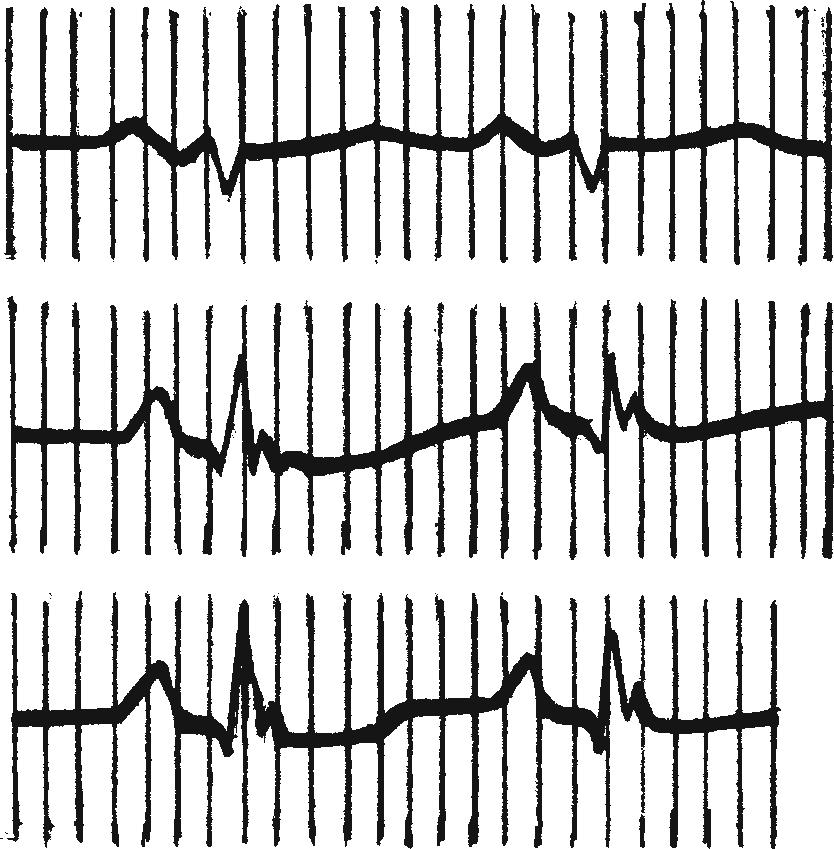 Электрокардиограмма при хроническом легочном сердце