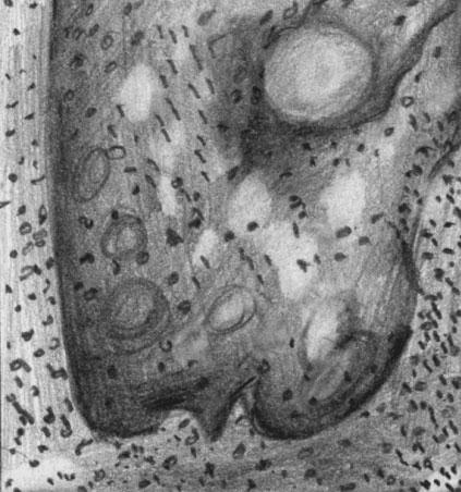 Фолликулярный кератоз (пласты эпителия с очагами кератинизации)