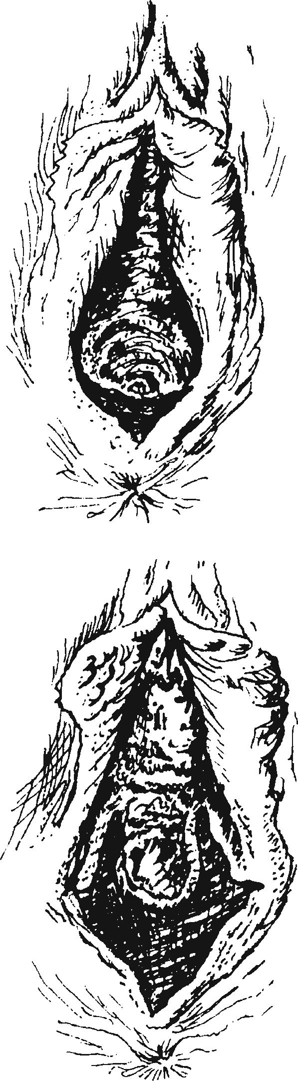 Гематома вульвы