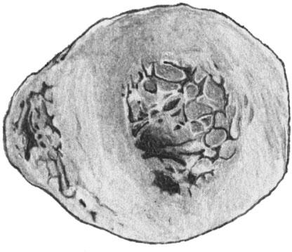 Гипертрофия левого желудочка сердца на поперечном разрезе