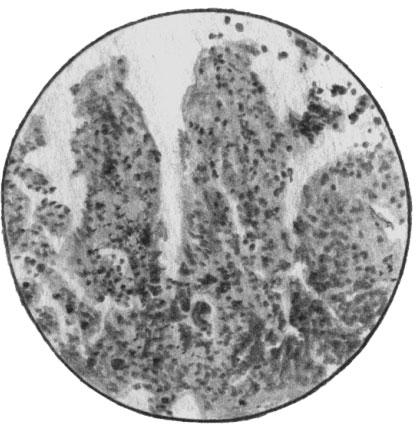 Холера. Ворсы тонкой кишки лишены эпителия
