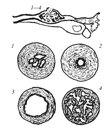Инфантилизм трубы, сопровождающийся недоразвитием мускулатуры ее, как причина трубной беременности