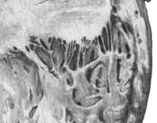 Инфаркт миокарда. Светлые участки некроза в толще боковой стенки левого желудочка миокарда