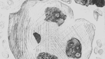 Карцинома печени (прижизненная пункция)
